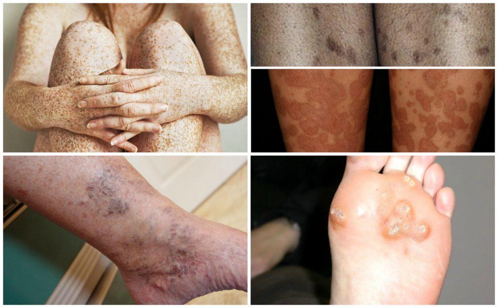 Как выглядит пигментация на ногах