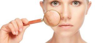 Обзор реальных отзывов на мазь Клотримазол против пигментации на лице