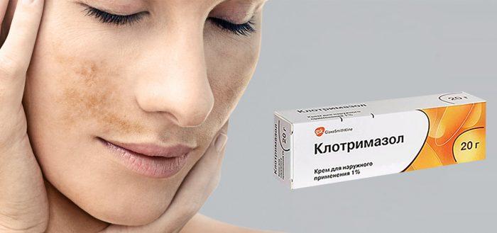 Принцип действия и эффективность Клотримазола от пигментации на лице