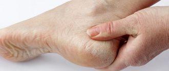 Почему шелушатся пятки - причины и лечение