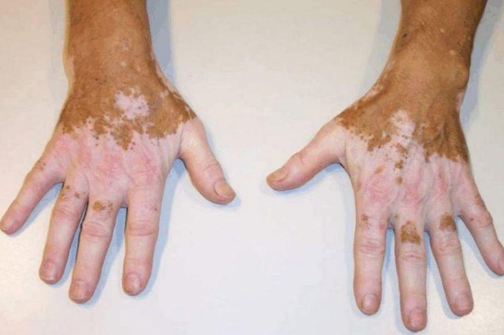 Причины появления пигментации кожи на руках