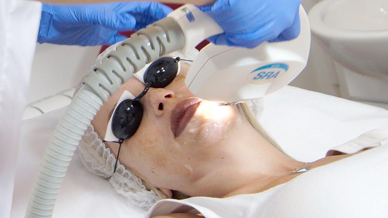 Реальные отзывы на применение лазера для удаления пигментации