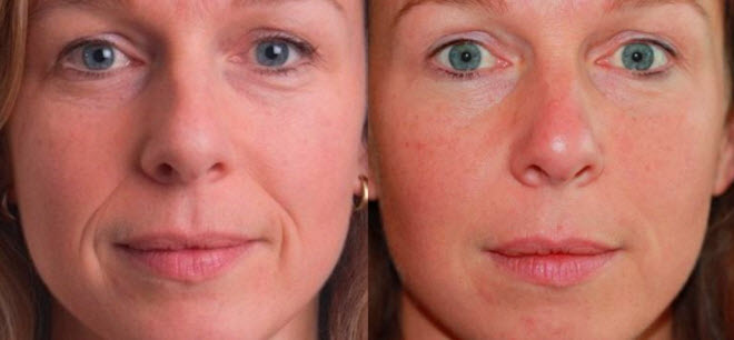 Фото до и после маски для лица
