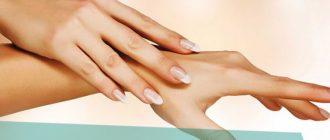 Что делать, если шелушится, краснеет и трескается кожа между пальцами рук