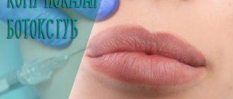 Кому показан ботокс губ – особенности процедуры и противопоказания