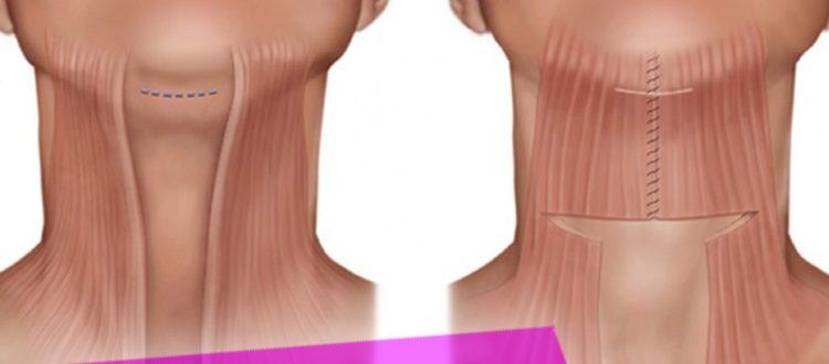 Виды подтяжки подбородка и шеи