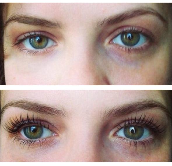 Фотографии до и после процедур ботокса