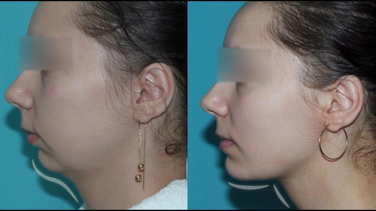 Фотографии до и после использования мезонити
