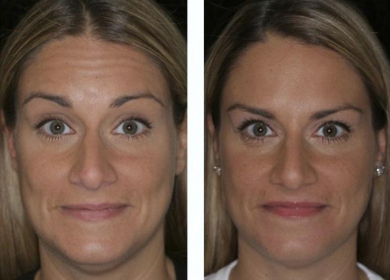 ботекс морщин фото до и после отзывы