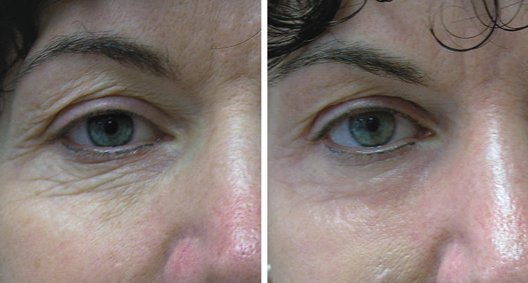 Лазер для кожи вокруг глаз