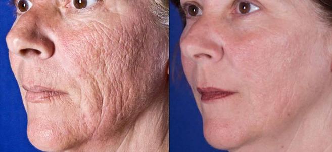 Фото до и после омоложения с использованием лазера