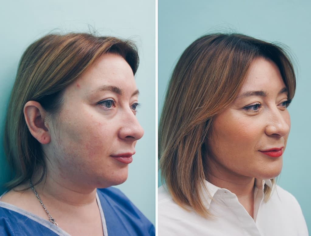 Фотографии до и после имплантации подбородка