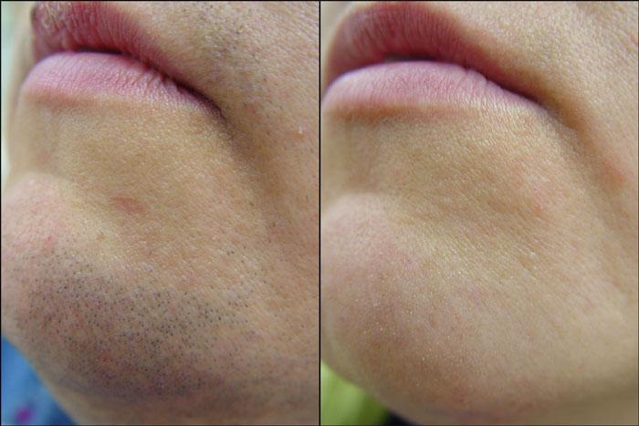 Фотографии до и после лазерной эпиляции подбородка