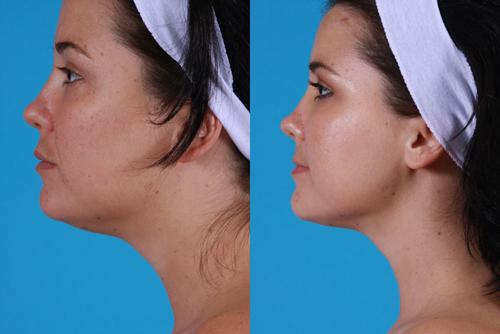 Фотографии до и после липосакции подбородка