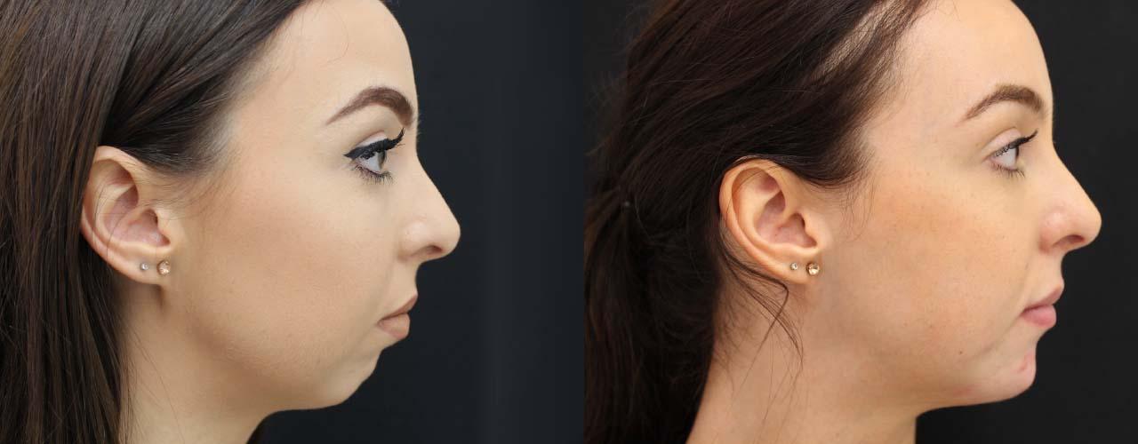 Фотографии до и после увеличения