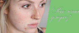 Демодекс на лице – правильное лечение, которое навсегда избавит вас от клеща