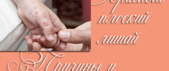 Красный плоский лишай у человека – фото, признаки и лечение