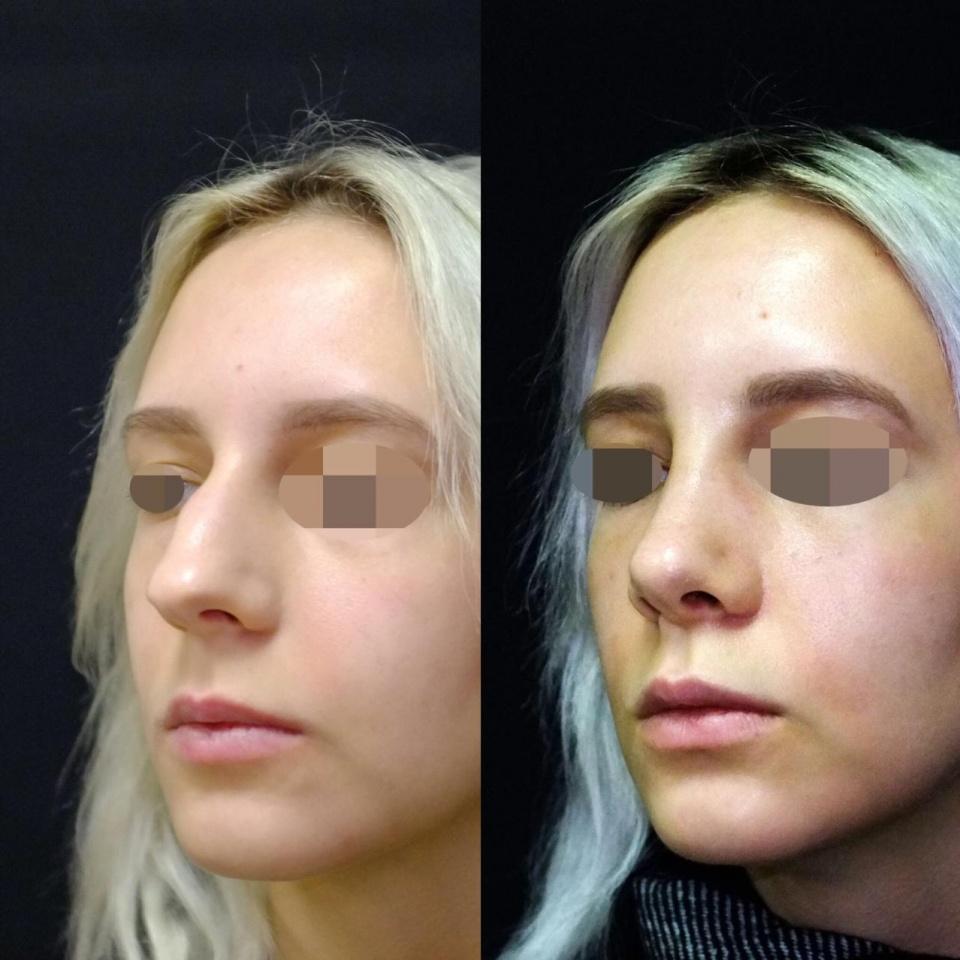 Что такое септопластика носа лазером: фото до и после