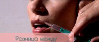 Филлер или ботокс – в чём разница препаратов?