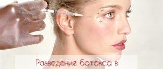 Как разводить ботокс для косметологии?